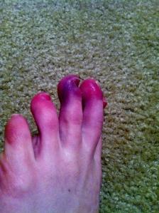 Frostbitten Toes